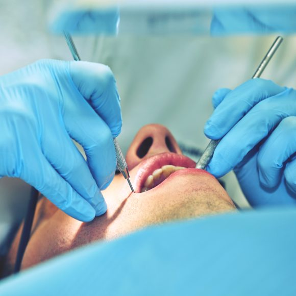 Periodontal Surgery